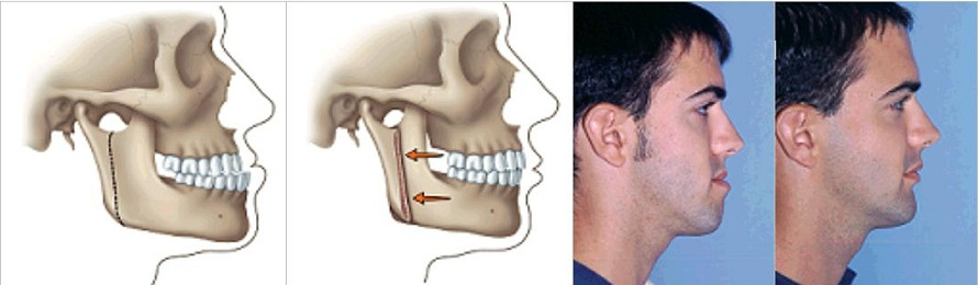 http://www.skokiebraces.com/images/surgical-orthodontics-skokie.jpg
